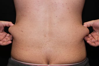 Laser Liposuction - Abdomen, Flanks before 1058400