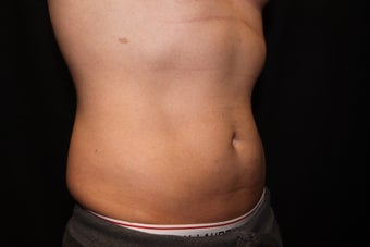 Laser Liposuction - Abdomen, Flanks 1058400