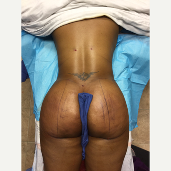 35-44 year old woman treated with Smart Lipo after 3286860
