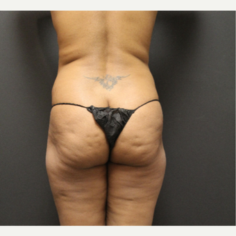 35-44 year old woman treated with Smart Lipo before 3286860