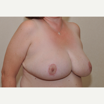 45-54 year old woman treated with Breast Reduction after 3103122