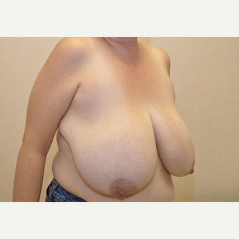 45-54 year old woman treated with Breast Reduction before 3103122