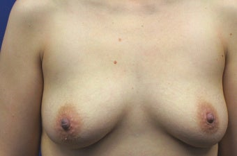 30 Year Old Woman who had a Breast Lift Procedure with Silicone Gel Implants before 1390209
