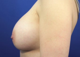 30 Year Old Woman who had a Breast Lift Procedure with Silicone Gel Implants 1390209