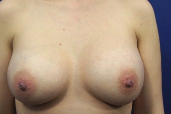 30 Year Old Woman who had a Breast Lift Procedure with Silicone Gel Implants after 1390209