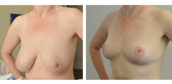 Before and after Breast Reduction after 1210432