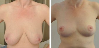 Before and after Breast Reduction before 1210432