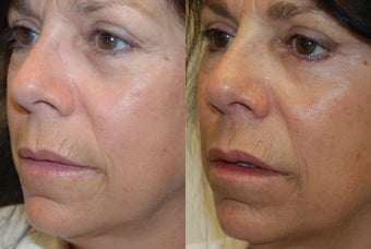 Lip Augmentation and Wrinkle Reduction with Silikon-1000. before 1364663