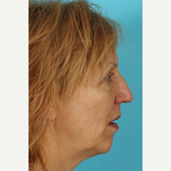 55-64 year old woman treated with Facelift before 3691422