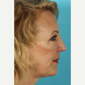 55-64 year old woman treated with Facelift after 3691422