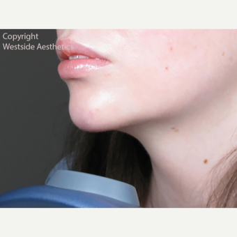 Chin Enhancement after 3065335