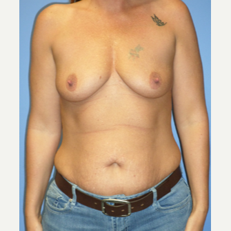 35-44 year old woman treated with Breast Implants before 3370253