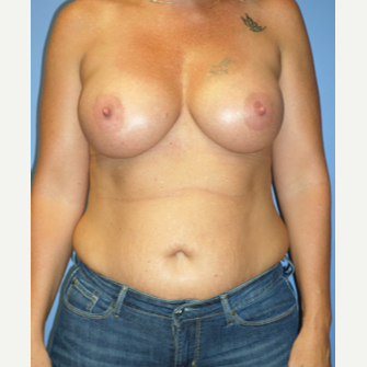 35-44 year old woman treated with Breast Implants after 3370253
