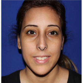 18-24 year old woman treated with Rhinoplasty before 3137020