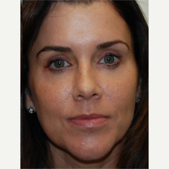 45-54 year old woman treated with Silikon 1000 to under eyes, cheeks, and lips. Forehead Botox.