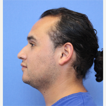 25-34 year old man treated with Rhinoplasty before 3377771