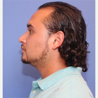 25-34 year old man treated with Rhinoplasty after 3377771