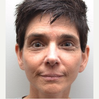 45-54 year old woman treated with Facelift after 3747623