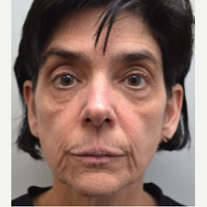 45-54 year old woman treated with Facelift before 3747623