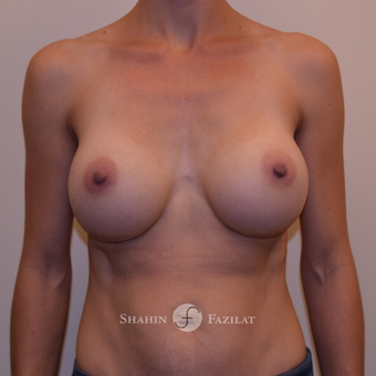 25-34 year old woman treated with Breast Augmentation after 3523100