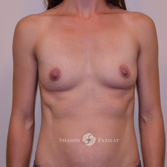 25-34 year old woman treated with Breast Augmentation before 3523100