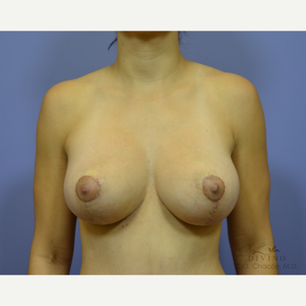 25-34 year old woman treated with Breast Lift with Implants after 3329413