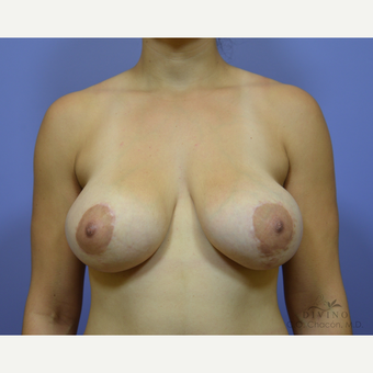 25-34 year old woman treated with Breast Lift with Implants before 3329413
