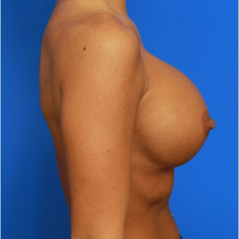 26- year old woman treated with Breast Implant Revision after 3168430