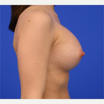 26- year old woman treated with Breast Implant Revision before 3168430