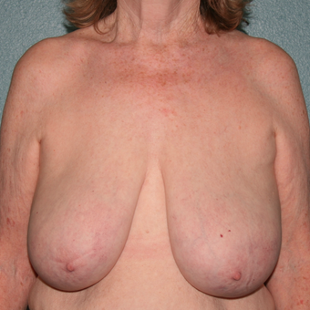 55-64 year old woman treated with Breast Reduction before 3444088