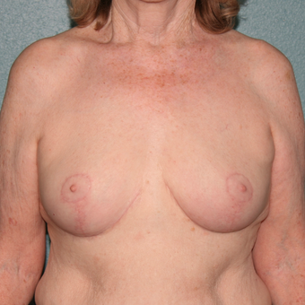 55-64 year old woman treated with Breast Reduction after 3444088