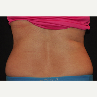 35-44 year old woman treated with CoolSculpting after 3476749