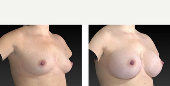 35-44 year old woman treated with Breast Augmentation before 3776345
