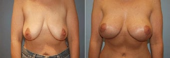 41yo who Dr Prysi performed breast lift combined with augmentation. before 1227788