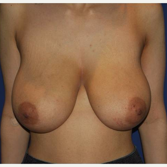 25-34 years old young female with complains of large breasts and sagging. before 2983243