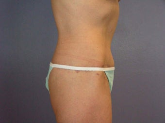 Tummy Tuck after 280114