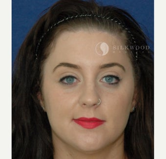 25-34 year old woman treated with Forehead Reduction after 2286734