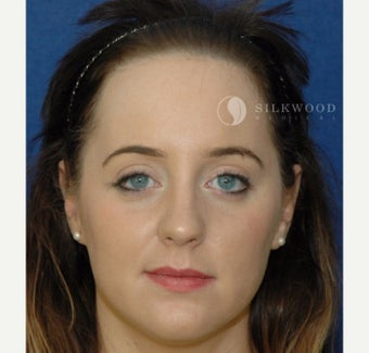 25-34 year old woman treated with Forehead Reduction before 2286734