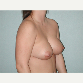 35-44 year old woman treated with Breast Implant Revision after 3851153