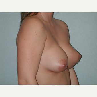35-44 year old woman treated with Breast Implant Revision before 3851153