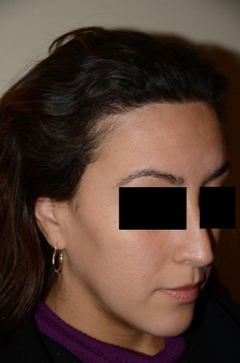 Hairline Lowering/ SHA after 1232360