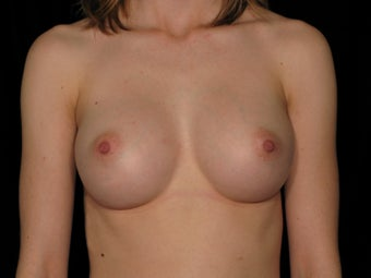 31 year old female - Breast Augmentation - 375 cc  after 1079492