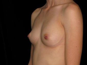 31 year old female - Breast Augmentation - 375 cc  1079492