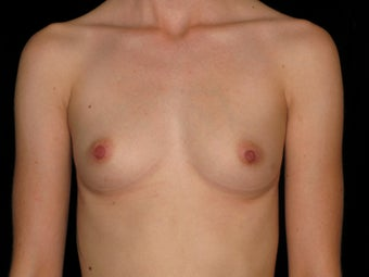 31 year old female - Breast Augmentation - 375 cc  before 1079492