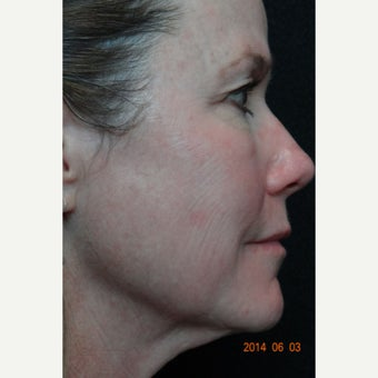 Thermage Full Face and Neck
