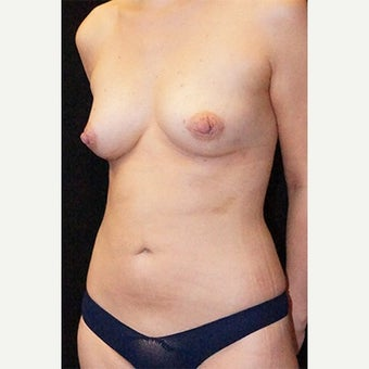 27 year old woman treated with Fat Transfer after 1615562
