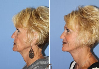 Revision Facelift and Filler  after 1344088