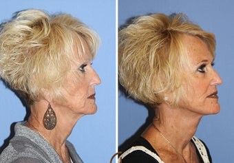 Revision Facelift and Filler  1344088