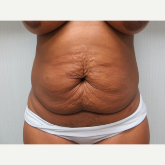 25-34 year old woman treated with Tummy Tuck before 3300059