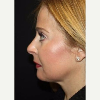 45-54 year old woman treated with Kybella after 2544122
